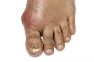 How to relieve gout pain in your foot fast
